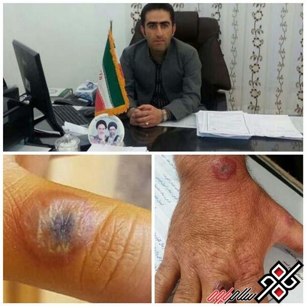 ۴ مورد بیماری سیاه زخم در شهرستان پاوه گزارش شد